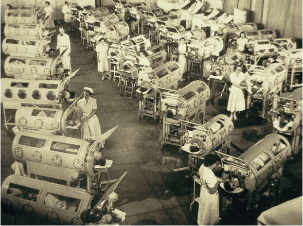 Picture of polio ward with many patients in iron lungs